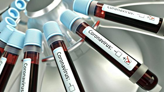 Toscana, plasma iperimmune dei guariti contro Coronavirus