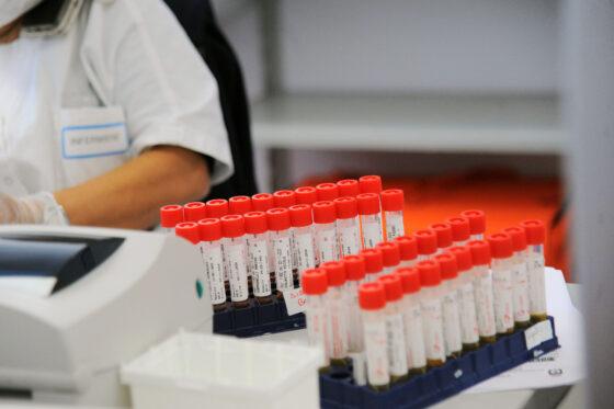 Coronavirus, Toscana: 2.244 casi positivi e 33 decessi in più rispetto a ieri