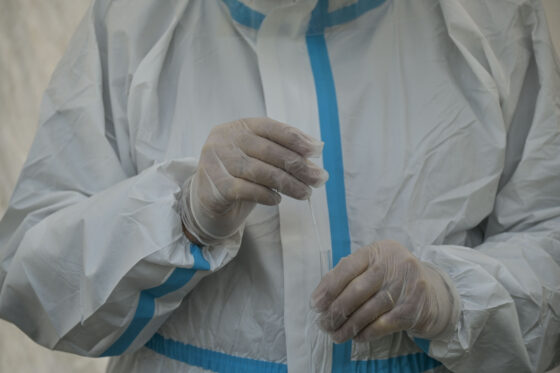 Coronavirus: 443 nuovi casi, 398 guariti,   18 decessi