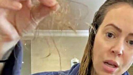 Caduta dei capelli a causa del Coronavirus? Sì ma…